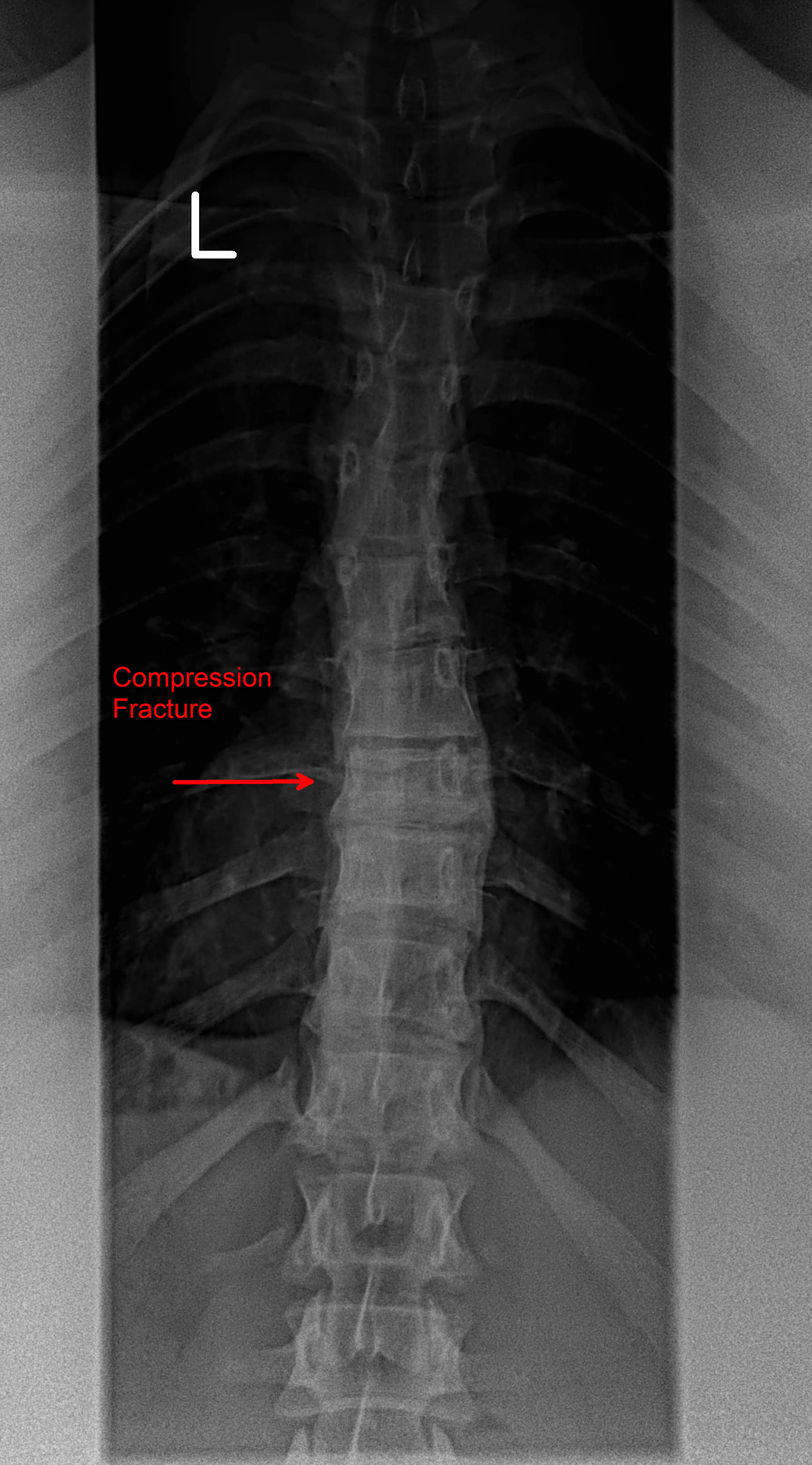 Compression Fracture AP